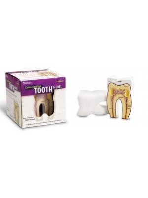 Model de studiu sectiune molar